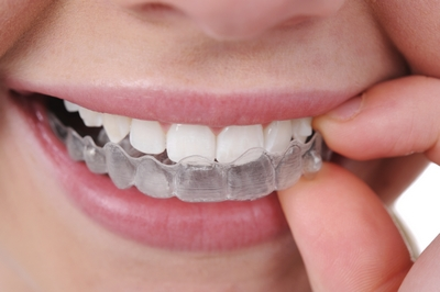 Invisalign Epping Dentist Epping