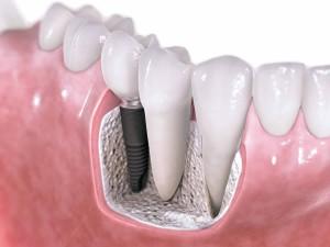 Dental Implants Epping Dentist Epping