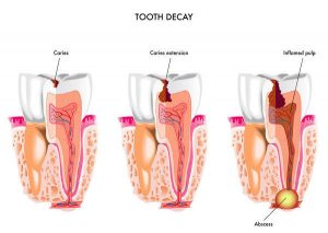 Tooth Decay Dental Caries Epping Dentist Epping