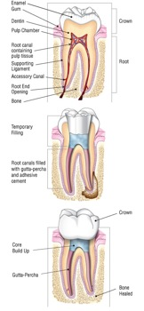 Root Canal Therapy Endodontics Epping Dentist Epping