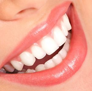 Teeth Whitening Epping Dentist Epping