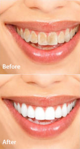 Cosmetic Dentistry Epping Dentist Epping