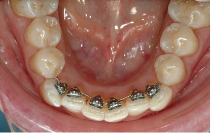 Straight Teeth Invisible Braces Dentist Epping Dentist