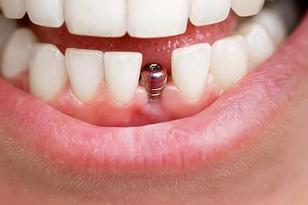Dental Implants Best Dentist Epping Dentist