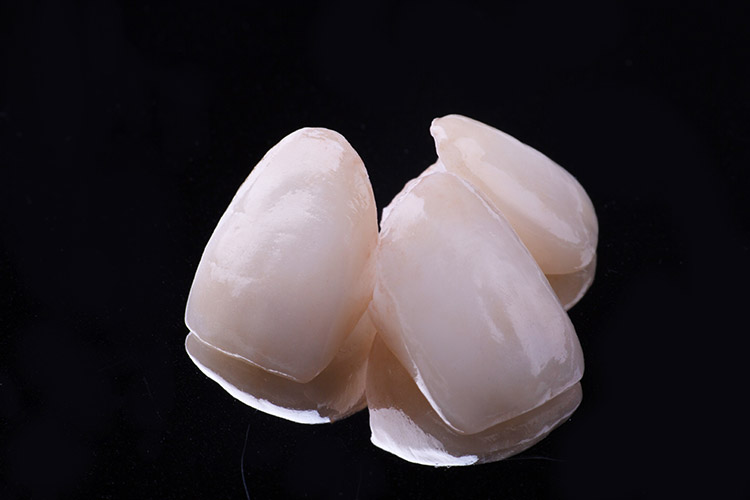 Veneers Epping Dentist Epping