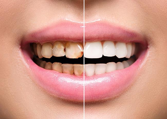 Tooth Whitening Best Dentist Epping Dentist