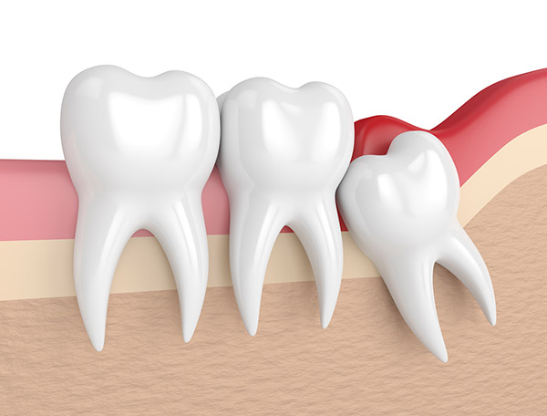 Oral Surgery Wisdom Teeth Extractions Epping Dentist Epping